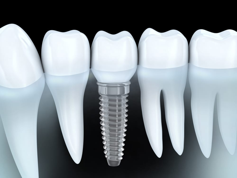 Dental Implants in Ottawa, ON