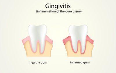 Gingivitis & Periodontitis