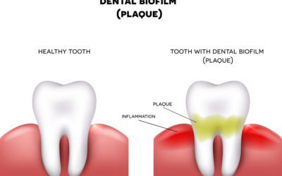 Causes of Periodontal Disease