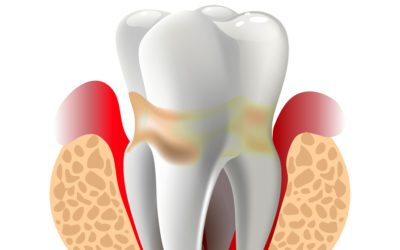 Types of Periodontal Disease
