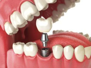 3-d rendered image of a dental implant surrounding by other teeth in the mouth