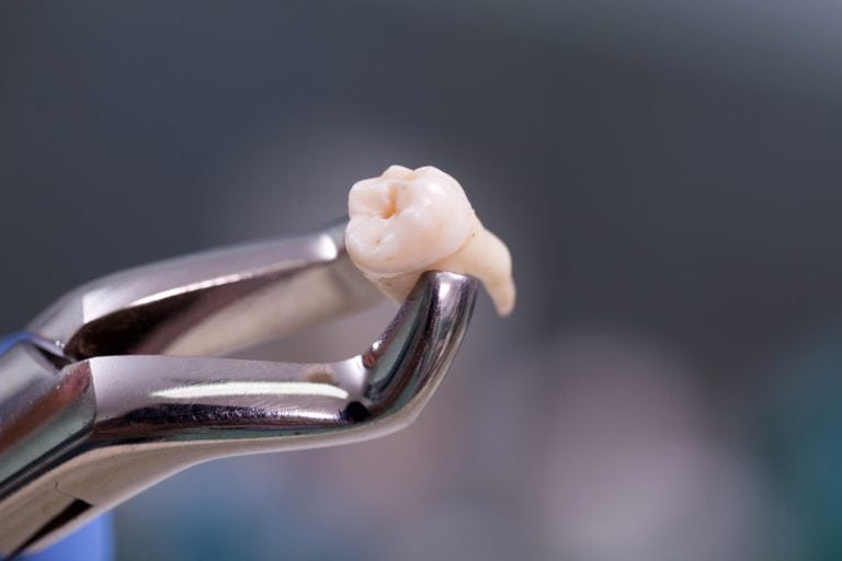 Dental instrument holding and extracted wisdom tooth